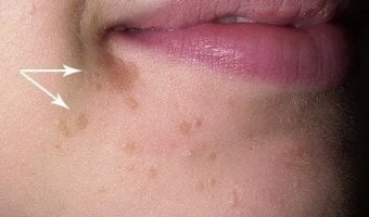 remove-small-warts