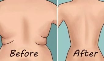 Eliminate Back Fat and Underarm Flab